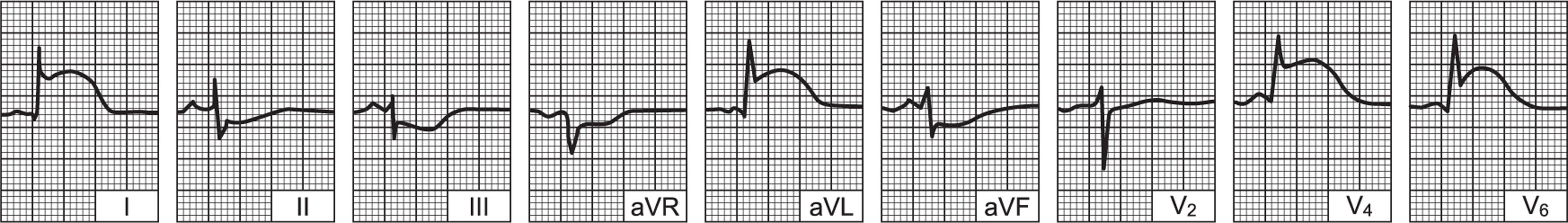 EKG srčana hipertenzija