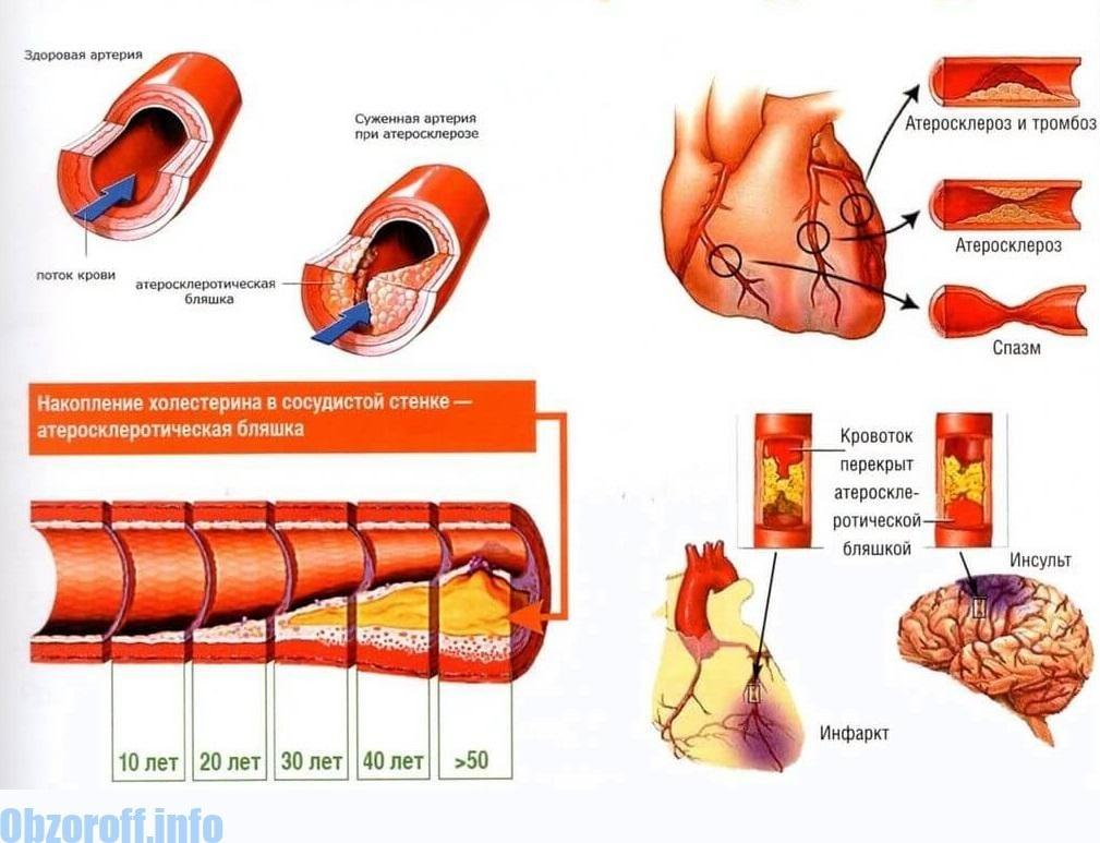 Hipertenzija drugog tipa liječenja