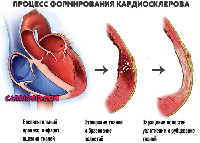 Uzroci, simptomi i liječenje neuroznanosti srca - pregled patologije