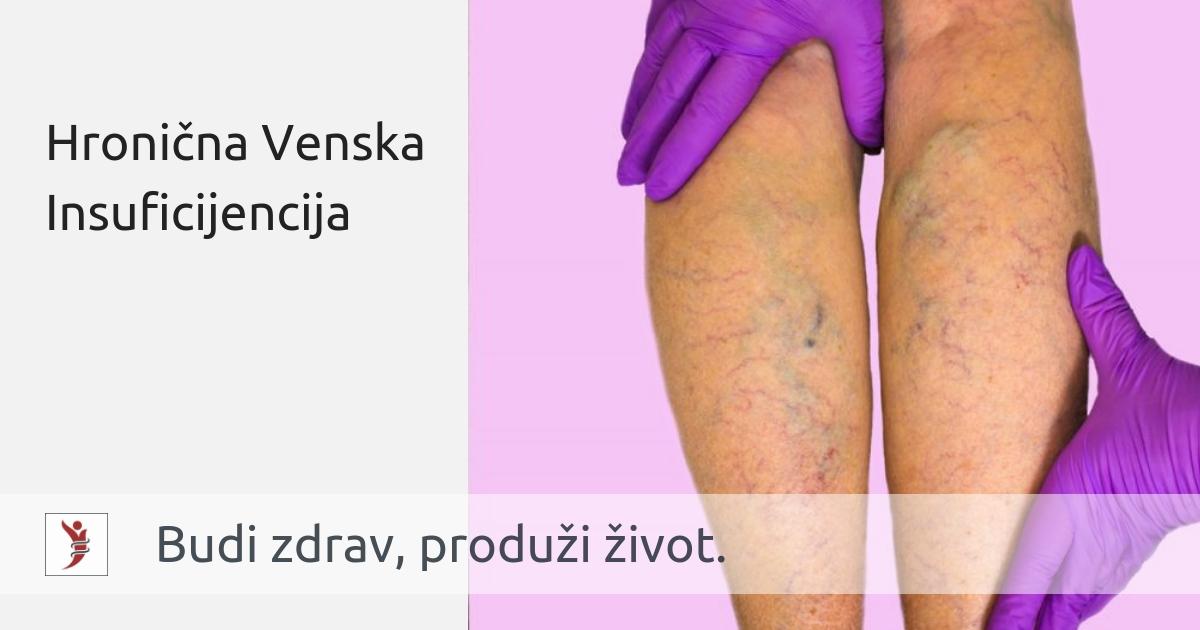 hipertenzija varikoziteti