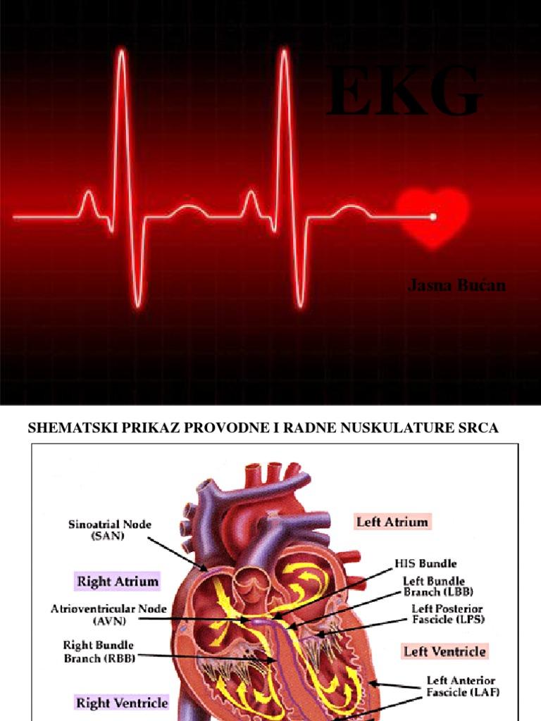 znakovi lijeve ventrikularne hipertonije