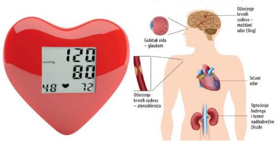 kako bi se utvrdilo da li postoji hipertenzija)