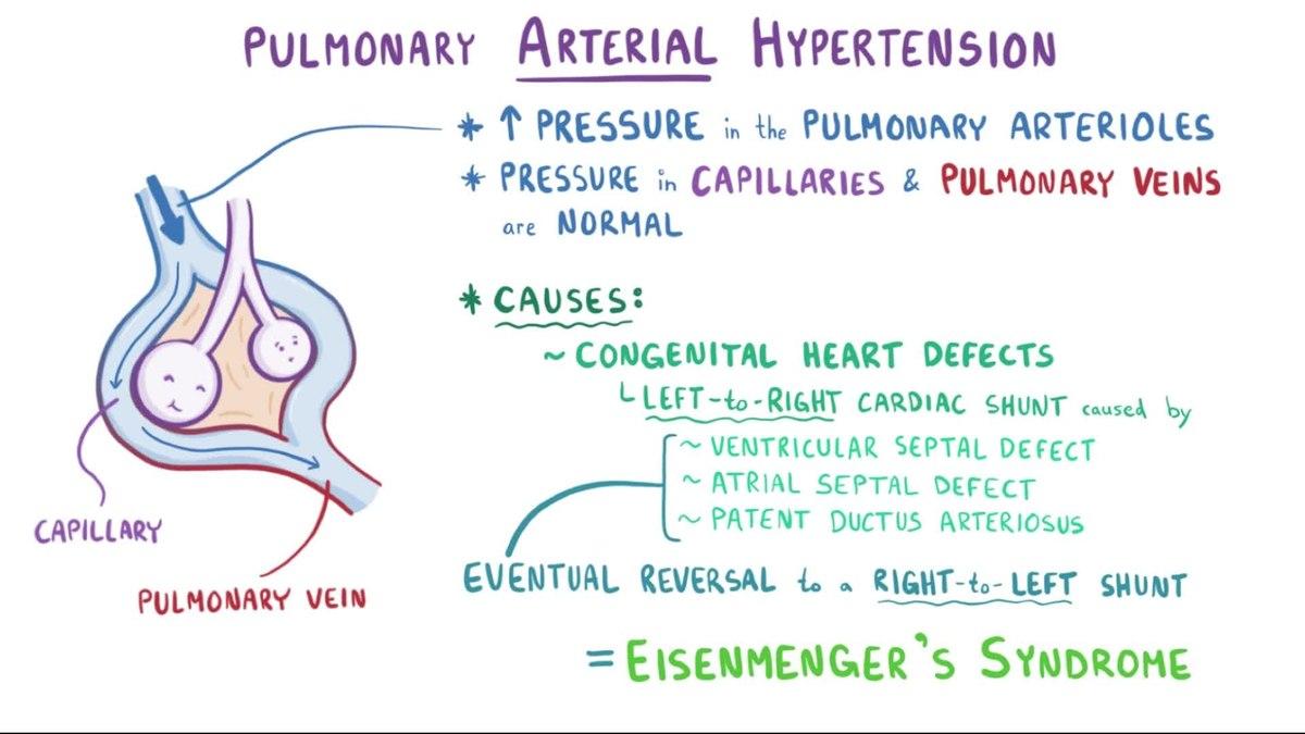 plućnog edema i hipertenzije)
