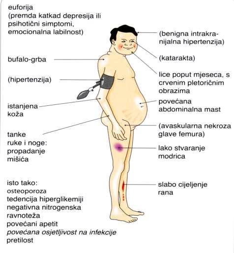 glukokortikoidi hipertenzija)