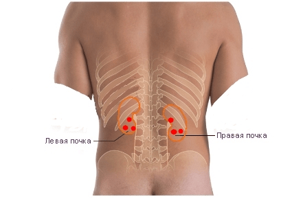 girudoterapiya točka za podešavanje hipertenzije