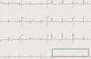 hipertenzija i sinusne bradikardije)