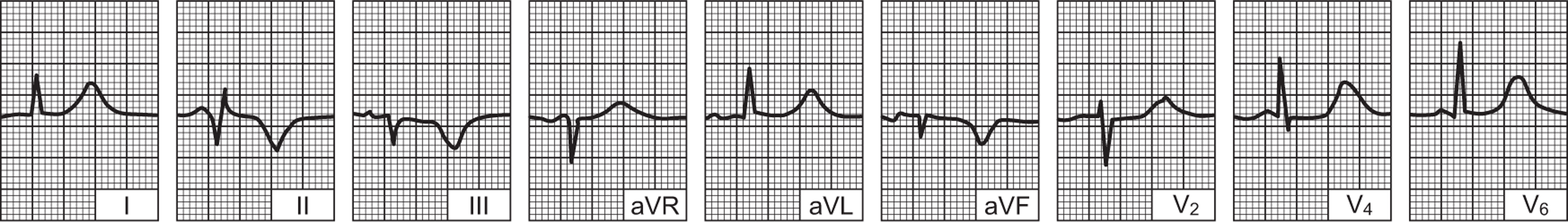 Srčani infarkt - PLIVAzdravlje