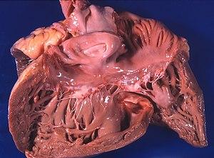 hipertenzija enciklopedija baka novine hipertenzija
