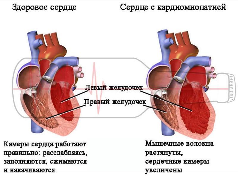 bol u srcu cijeđenje