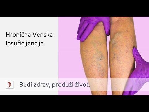 varikoziteti hipertenzija)