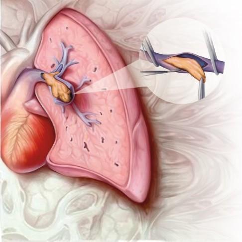 hipertenzija i desno