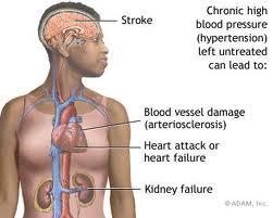 hipertenzija teretana