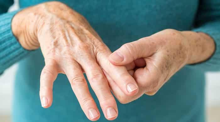artritis hipertenzije