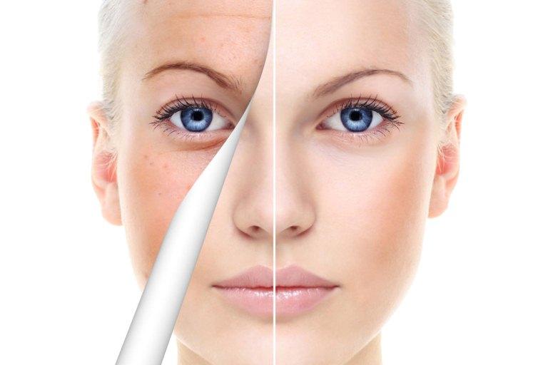 Vaskularna mreža na licu i kako se riješiti - Prevencija