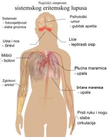 sistemski lupus liječenje hipertenzije)