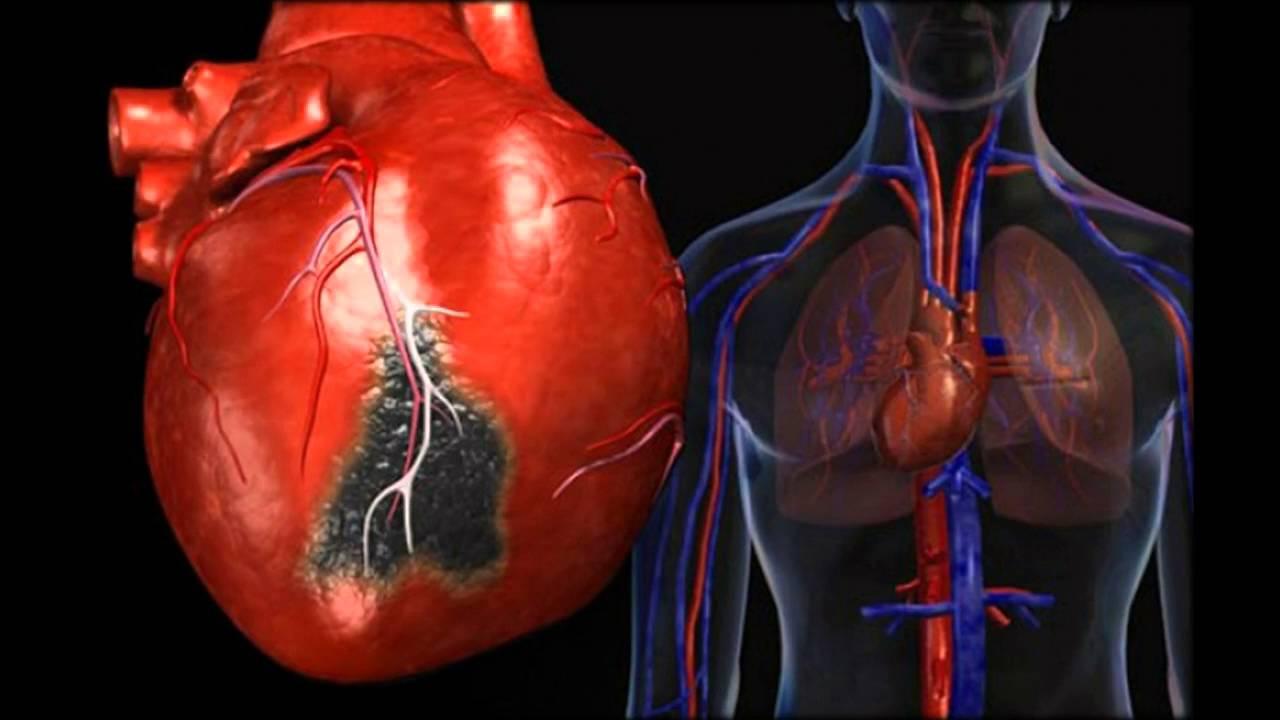 oskultacija hipertenzija