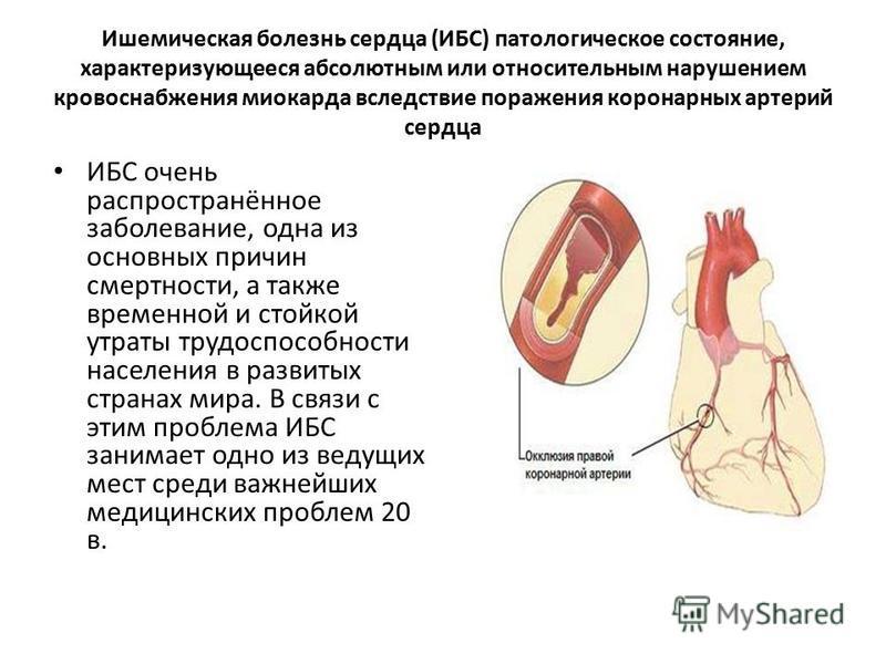 dihlotiazid hipertenzija)