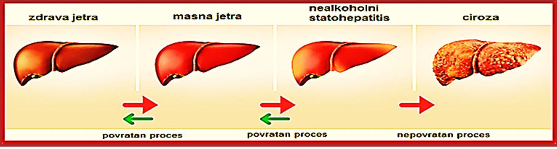 Masna jetra – uzroci, simptomi i liječenje | Bolesti - Kreni zdravo!
