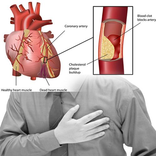hipertenzija ishrana u ateroskleroze)