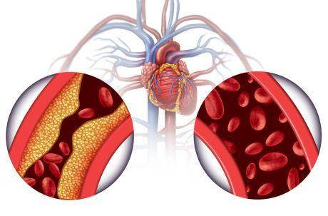 Hipertenzija - visoki tlak - Fitoaromaterapija