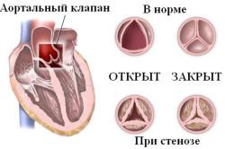 Lijeva ventrikularna hipertenzija od čega