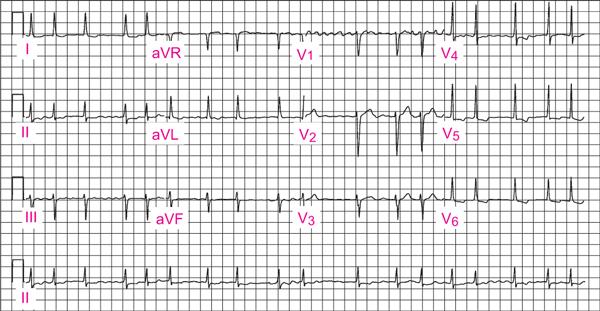 hipertenzije, lijevog atrija