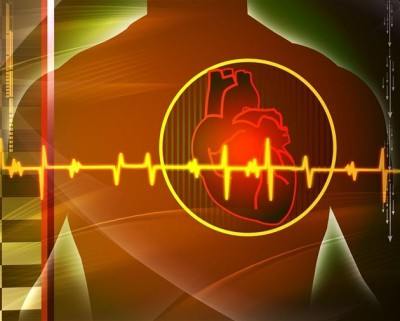 za razliku od hipertenzije distonija