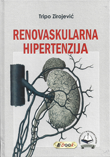 disati hipertenzija paketu mkb 10 kod hipertenzije