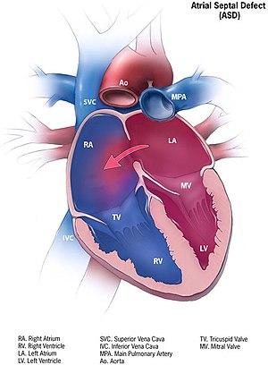 2 i hipertenzije asd-