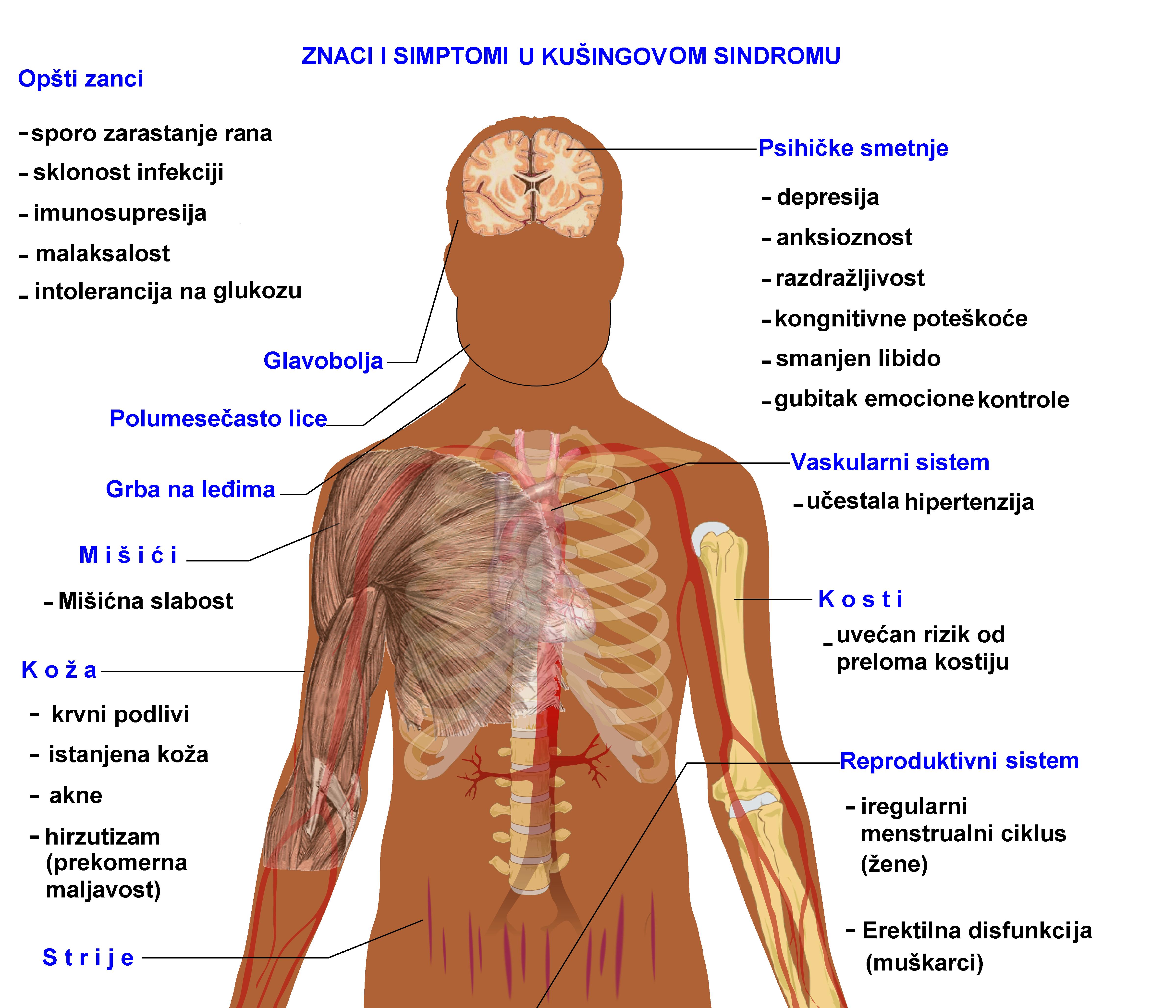 što glavobolja i hipertenzije dva recepata za hipertenziju