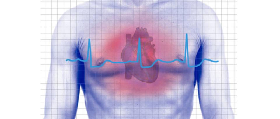 punjenja nakon srčanog udara)