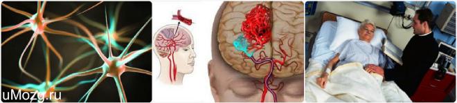 MSD priručnik dijagnostike i terapije: Vaskularna demencija