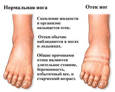 zato hipertenzija otečene noge