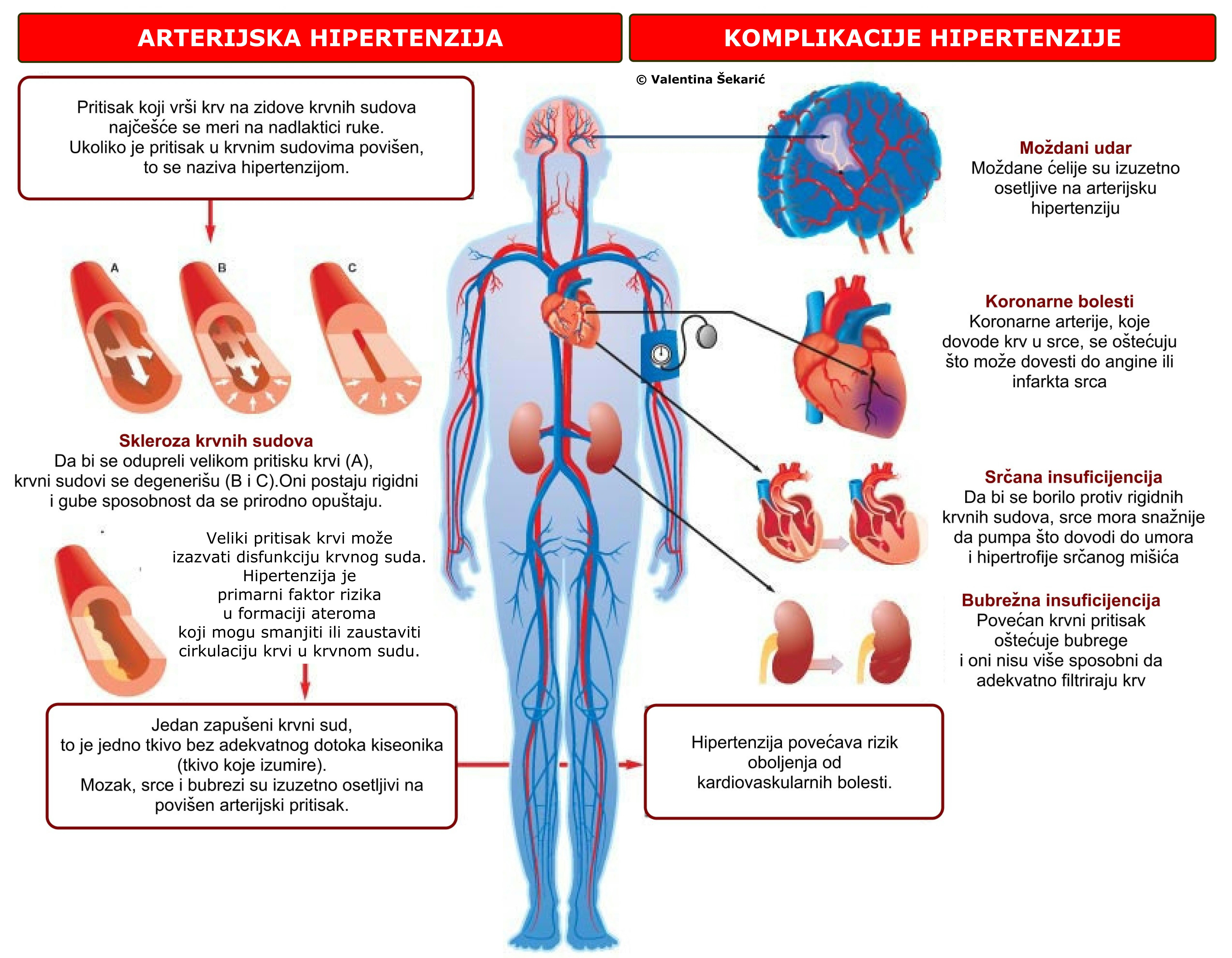 hipertenzija ne može ostvariti