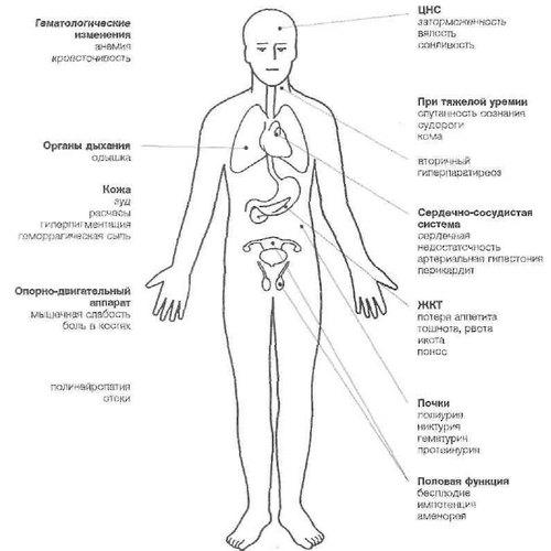 centar za liječenje hipertenzije kod yasenevo)