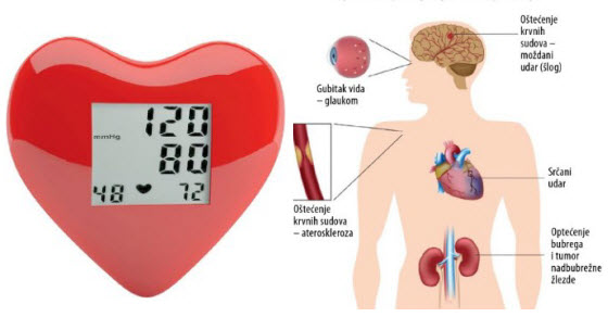koji su simptomi hipertenzije)