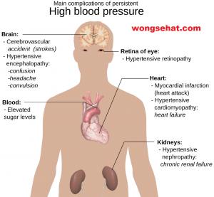 hipertenzija, renalna simptoma)