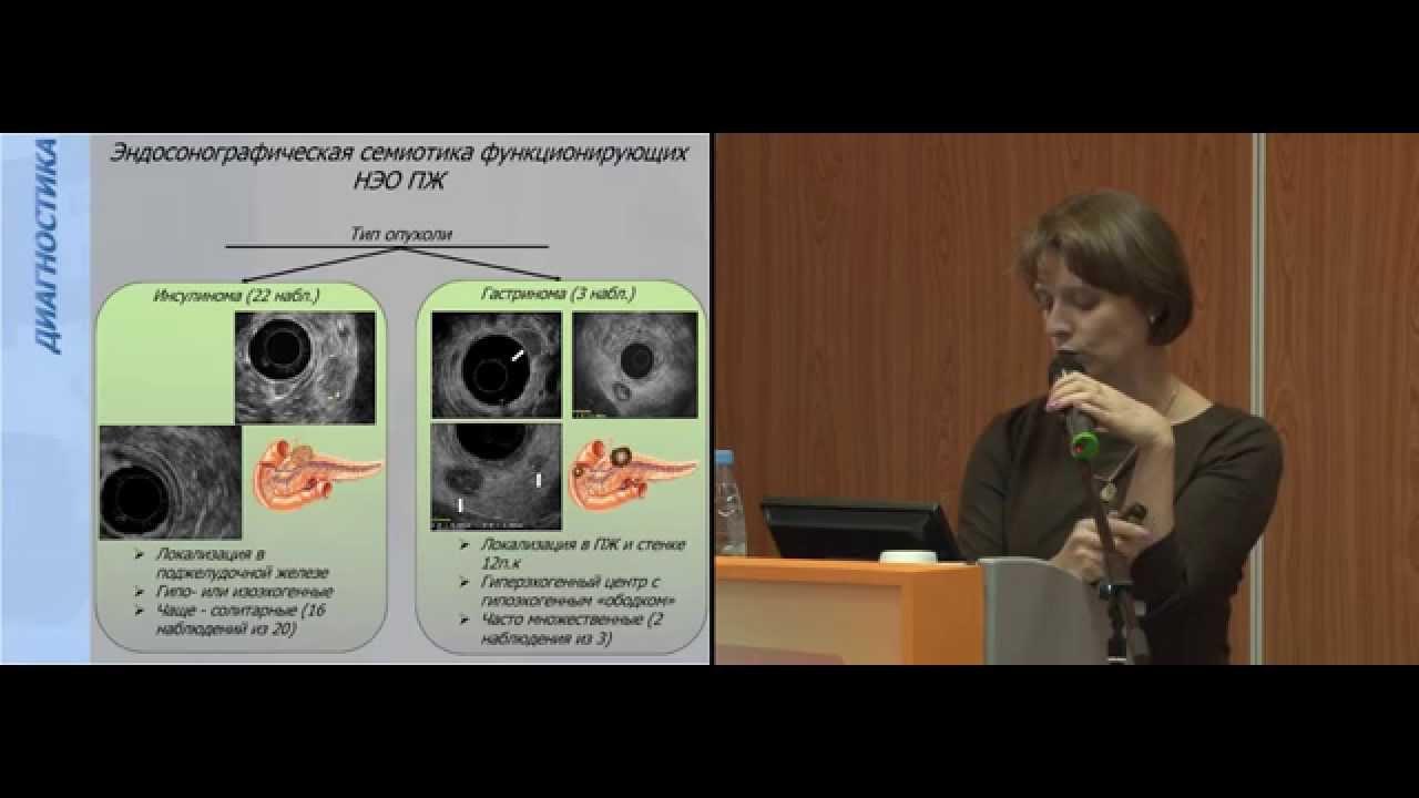 Feokromocitom / Članci - symposium-h2o.com