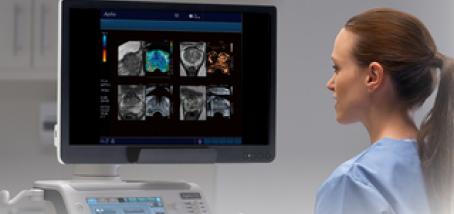 ultrazvuk srca pokazuju hipertenzije kao lijek prvog stupnja hipertenzije