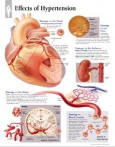 hipertenzija i natašte u vodi