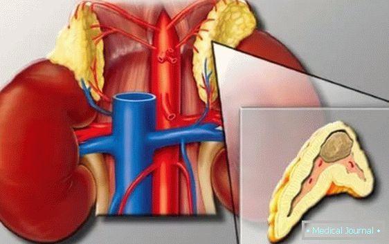 hipofiza i hipertenzije