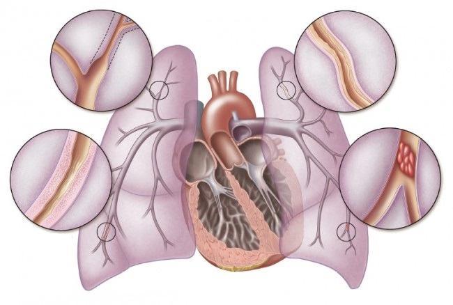 lijekovi za liječenje hipertenzije krug