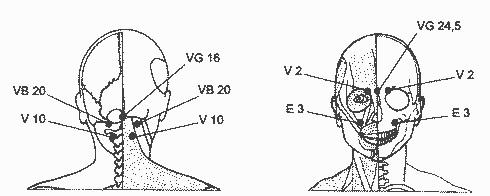 akupresure hipertenzija lica