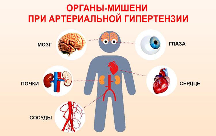 Očna hipertenzija (visoki tlak u očima)   symposium-h2o.com