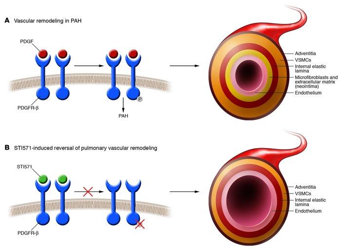Vaskularna hipertenzija liječenje fibromuskularne displazije