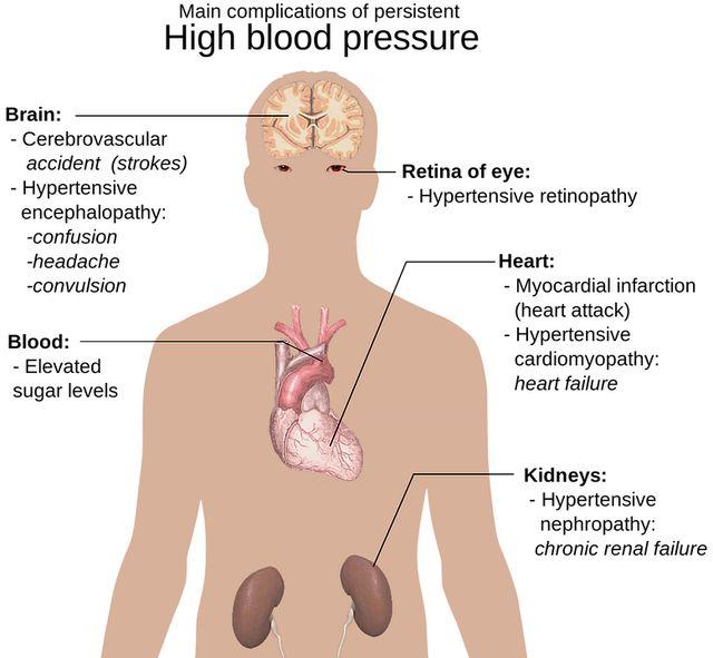 hipertenzija i vrata masažu