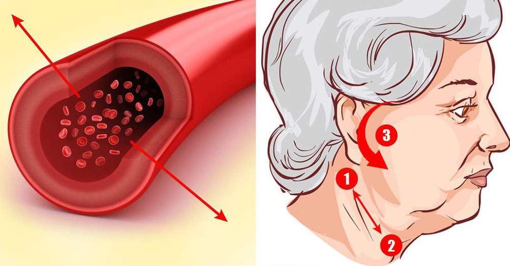 točke na tijelu od hipertenzije)