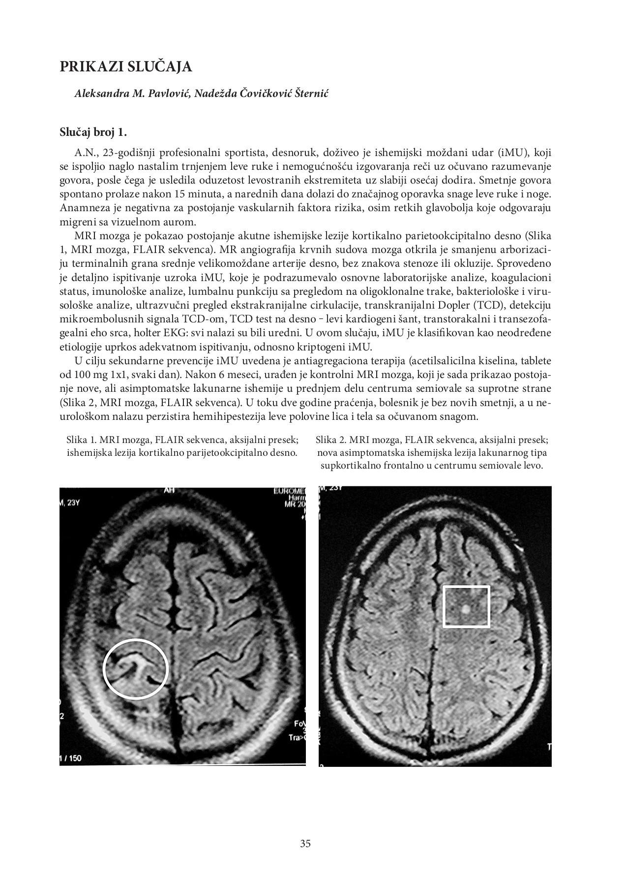 hipertenzija mri mozga