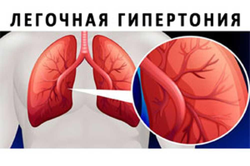algoritam hipertenzija liječenje
