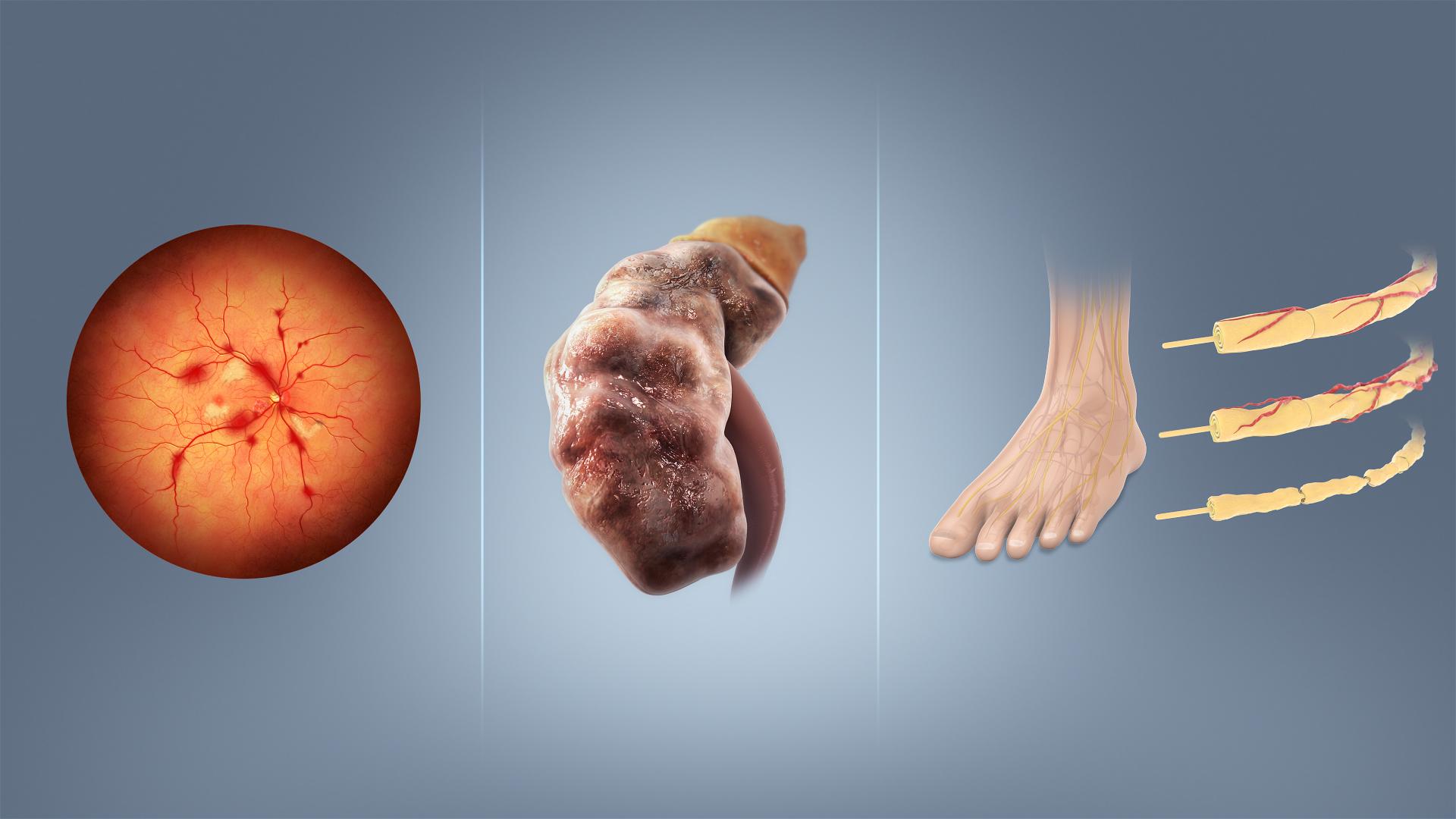 da je primarna hipertenzija ili dijabetes)